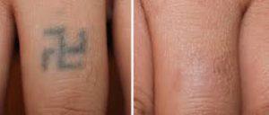 Tattoo Verwijderen Snel Een Mooi Resultaat Met De Picolaser